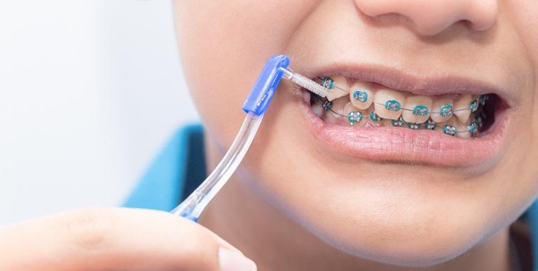 Nên tháo thun niềng răng khi vệ sinh răng miệng