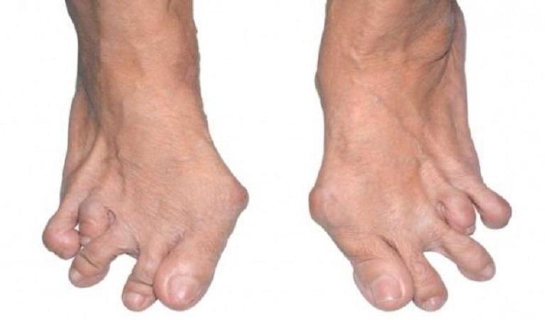 Người bị viêm khớp dạng thấp thường có hiện tượng viêm tại cả khớp lớn và khớp nhỏ