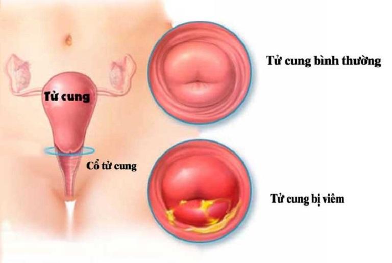 Hình ảnh cổ tử cung bình thường và bị viêm