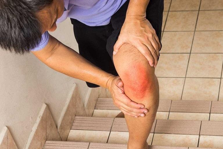 Khớp bị viêm khiến người bệnh đau nhức và khó khăn trong việc cử động