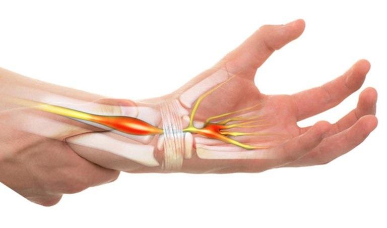 Hội chứng ống cổ tay là biến chứng thường gặp của bệnh viêm đa khớp dạng thấp