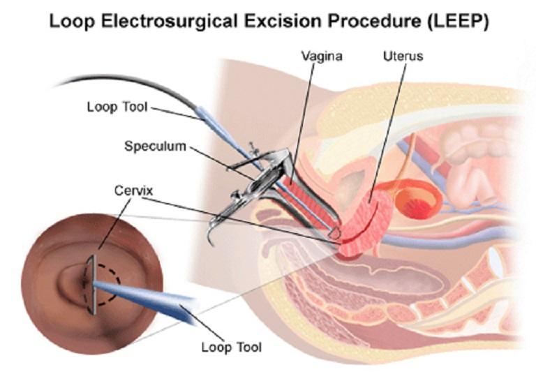 Hình ảnh minh họa kỹ thuật cắt leep cổ tử cung