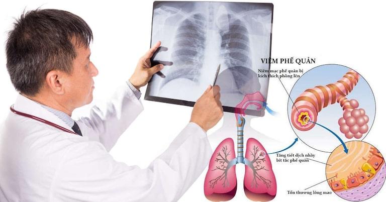 Hình ảnh viêm phế quản trên phim chụp X quang phổi