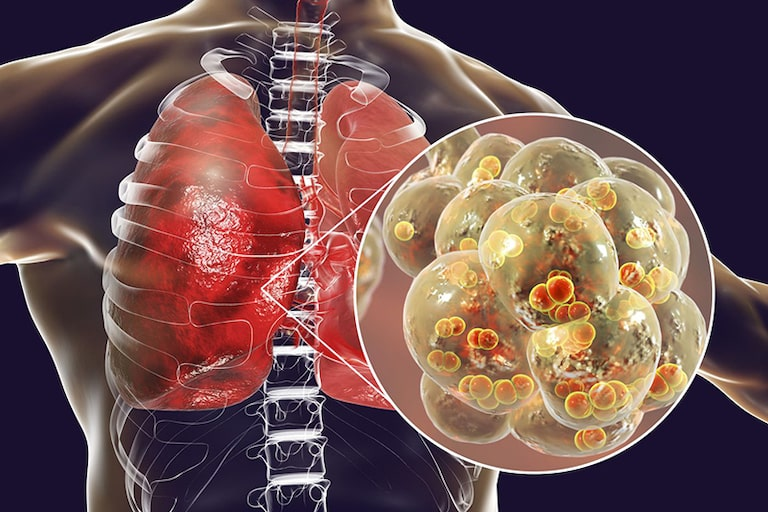 Đường phế quản bị viêm không điều trị kịp thời sẽ gây nên biến chứng viêm phổi nguy hiểm