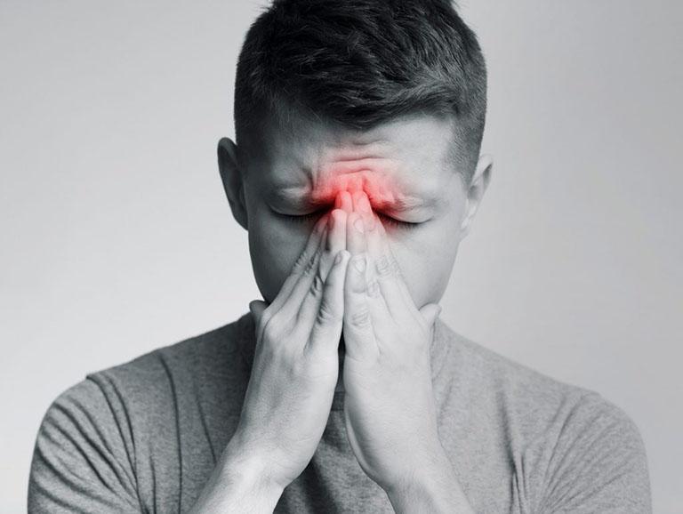 Viêm xoang là bệnh lý về hô hấp thường gặp