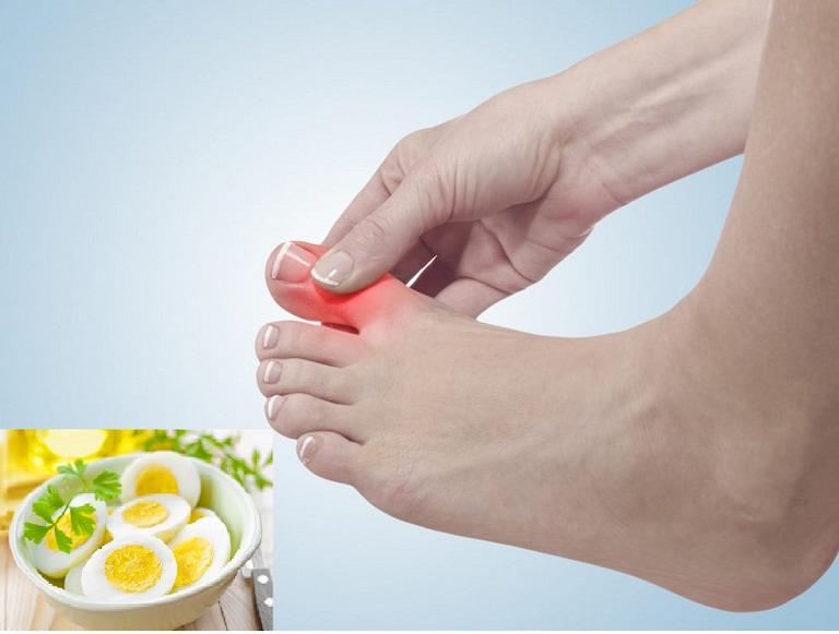 Người bệnh gút có thể ăn trứng với lượng vừa phải