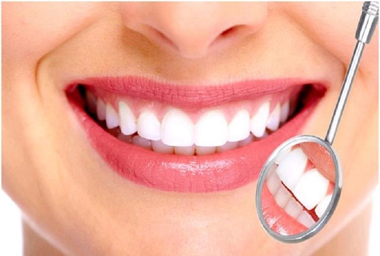 Chi phí bọc răng sứ cho răng lệch lạc là bao nhiêu, đắt hay không?