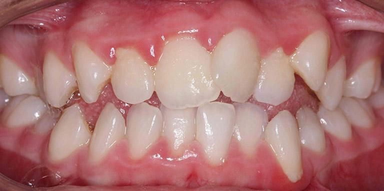 Răng mọc lệch mang đến nhiều tác hại cho người bệnh