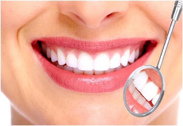 Kỹ thuật bọc răng sứ mang lại hàm răng đều đẹp, thẩm mỹ cao