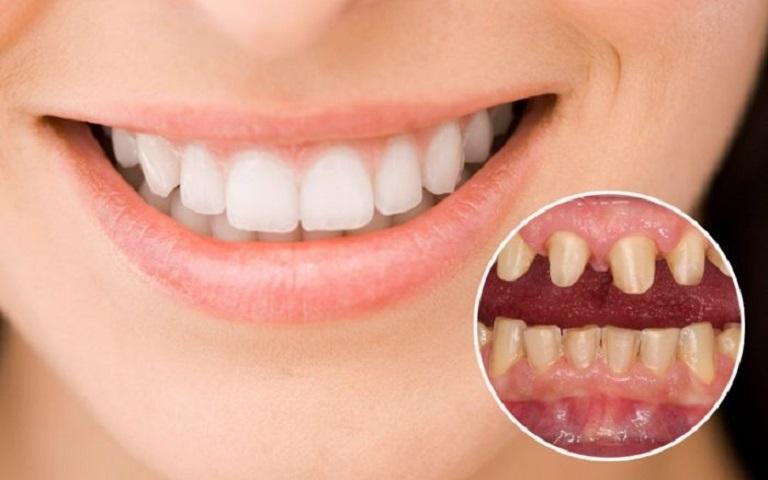 Chọn nha khoa uy tín để có hàm răng sứ đẹp như ý