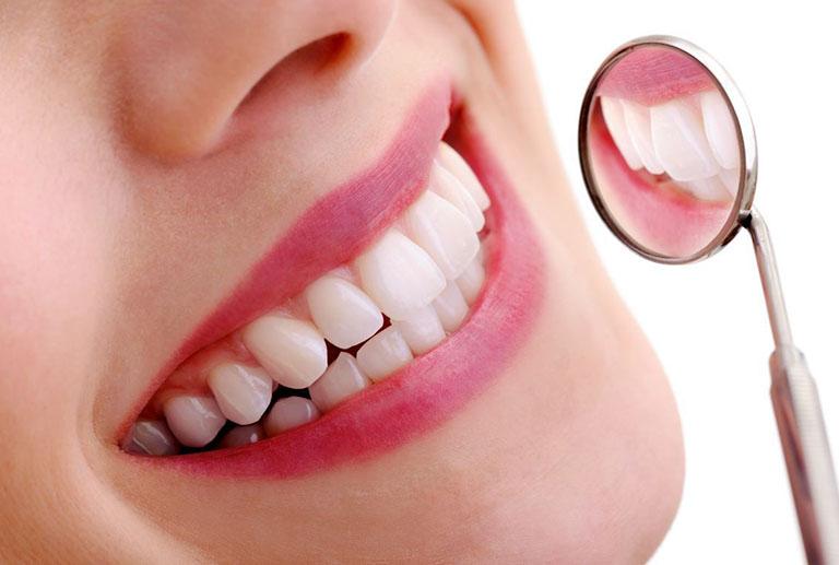 Bọc răng sứ là phương pháp phục hình thẩm mỹ cho răng