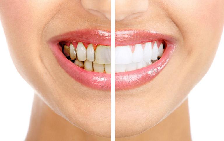 Bọc răng sứ giúp cải thiện tình trạng răng ố vàng, xỉn màu
