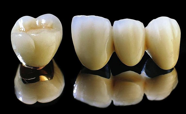 Răng sứ Titan có cấu tạo lớp sườn bên ngoài từ hợp kim Titan