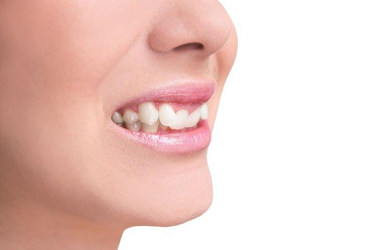 Niềng răng khểnh khi răng mọc lệch quá mức làm ảnh hưởng đến việc ăn nhai