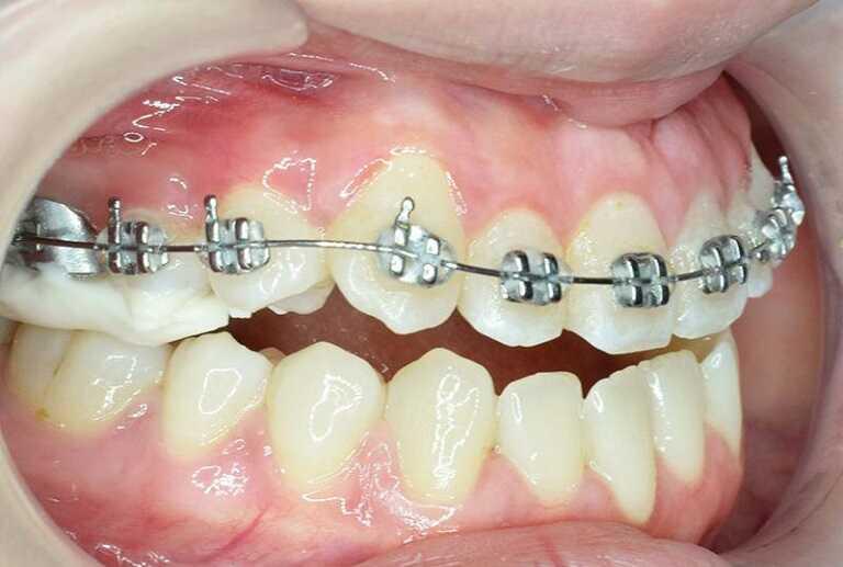Kỹ thuật niềng răng 1 hàm tùy thuộc vào mức độ sai lệch của răng