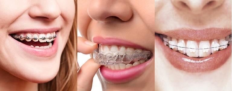 Các phương pháp niềng răng 1 hàm và 2 hàm phổ biến