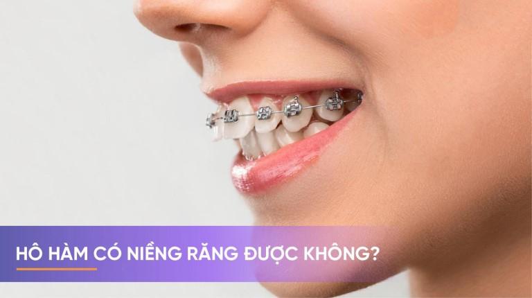Răng bị hô hàm có niềng được không là thắc mắc của rất nhiều người