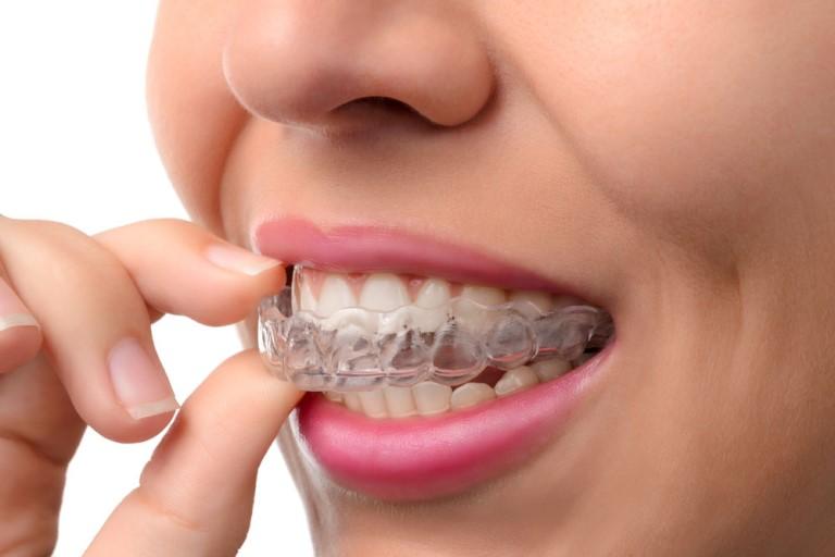 Chi phí niềng răng hô hàm phụ thuộc vào nhiều yếu tố khác nhau