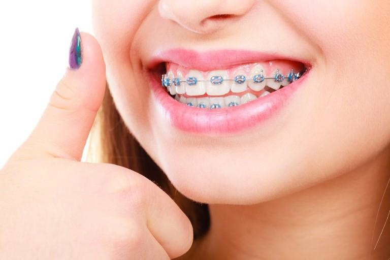 Niềng răng hô 1 hàm hay 2 hàm đều có sự chênh lệch về giá thành