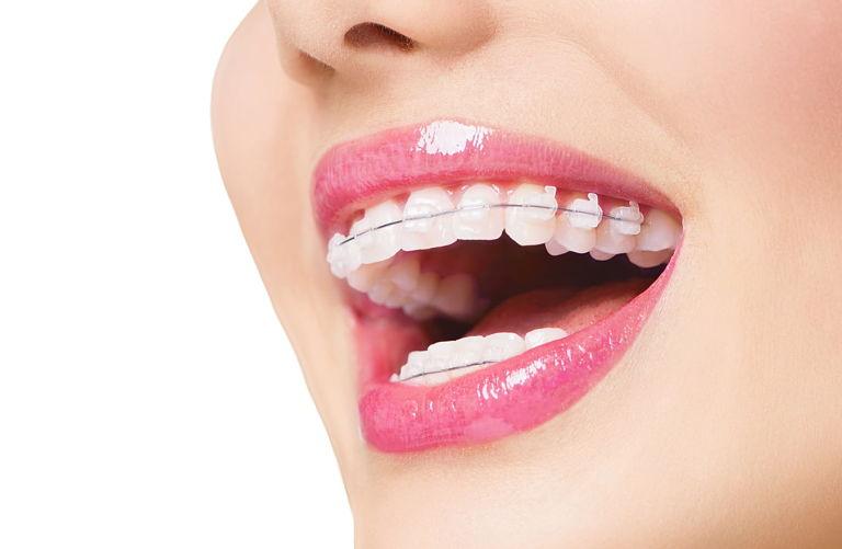 Giá niềng răng mắc cài sứ bao nhiêu còn tùy vào phương pháp thực hiện