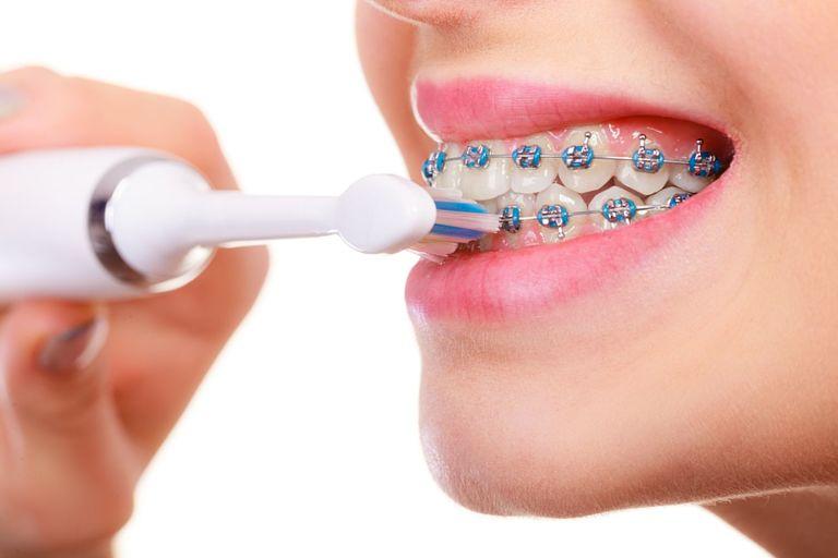 Bạn lưu ý chăm sóc răng miệng cẩn thận trong quá trình niềng răng
