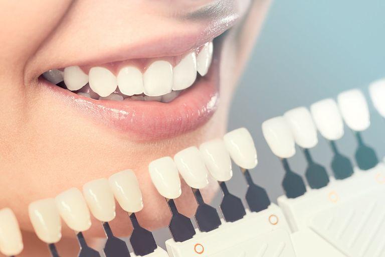 Giá răng sứ Veneer phụ thuộc vào nhiều yếu tố khác nhau