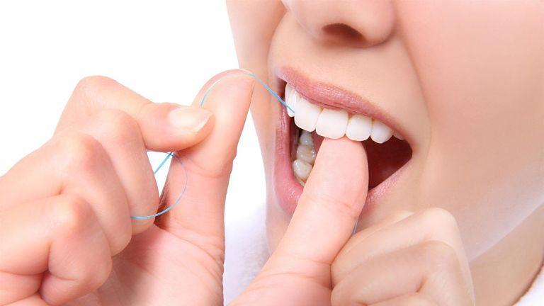 Khách hàng cần vệ sinh răng miệng sạch sẽ hàng ngày
