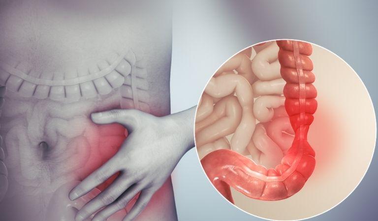 Hội chứng ruột kích thích là gì