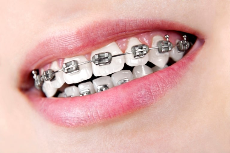 Những trường hợp có thể niềng 2 răng cửa bị hô