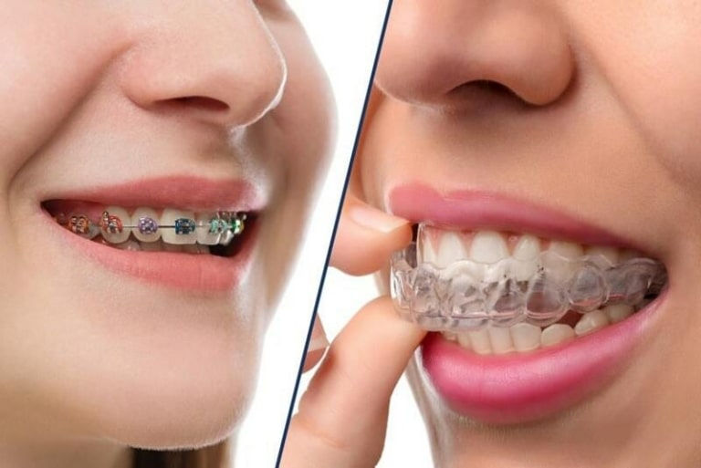 Chi phí niềng răng cũng phụ thuộc vào phương pháp mà bạn lựa chọn