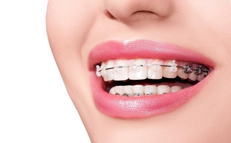 Thời gian niềng 2 răng cửa bị hô cũng phụ thuộc vào độ tuổi của người bệnh