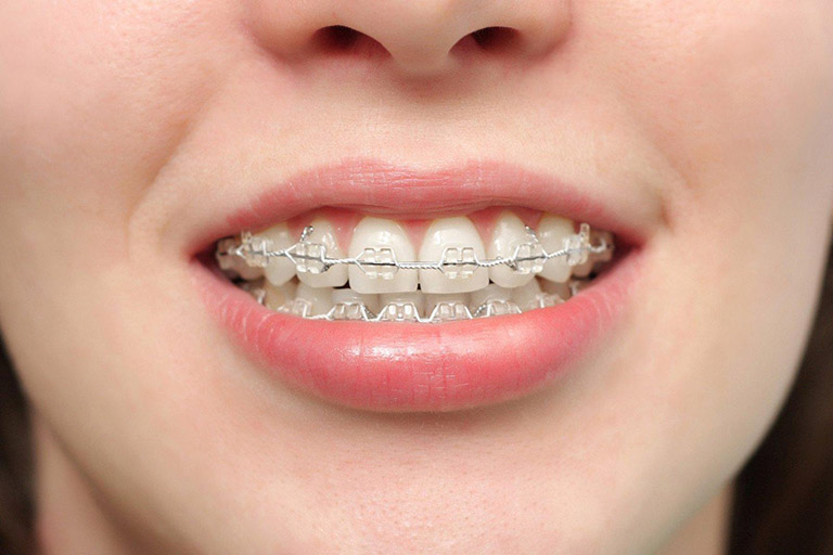 Bác sĩ chuyên môn kém cũng có thể khiến má bị hóp khi niềng răng