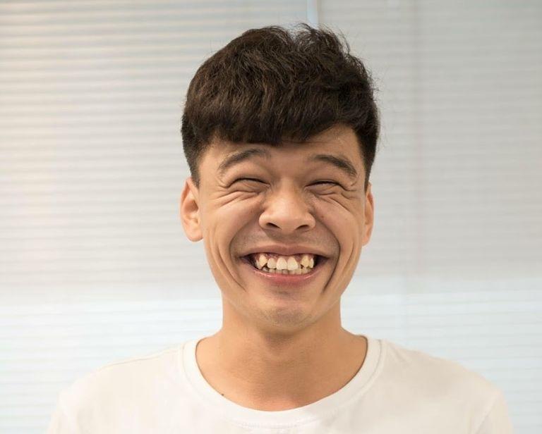 Răng khểnh là răng nanh mọc chếch lên trên so với các răng khác