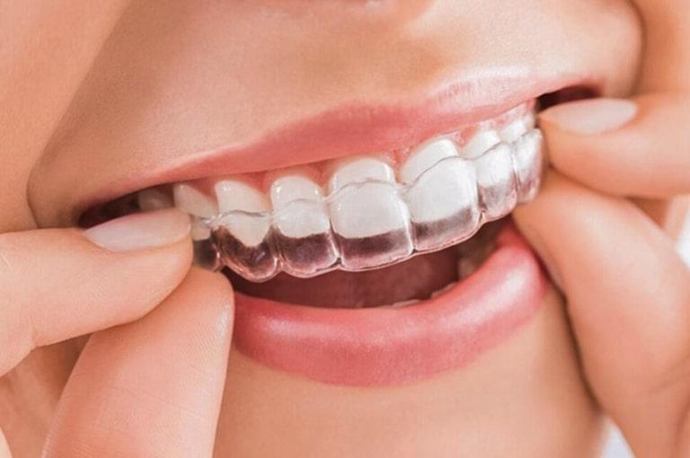 Niềng răng hô bằng nhựa là sử dụng bộ khay bằng nhựa dẻo trong suốt