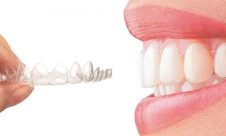 Phương pháp niềng răng trong suốt có nhiều ưu điểm vượt trội hơn so với cách làm truyền thống