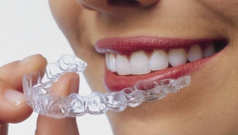 Niềng răng Invisalign là sáng chế của các nha khoa hàng đầu Hoa Kỳ