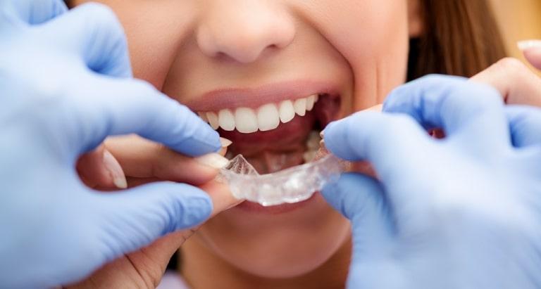 Người bệnh nên lựa chọn địa chỉ niềng răng uy tín để tránh những rủi ro