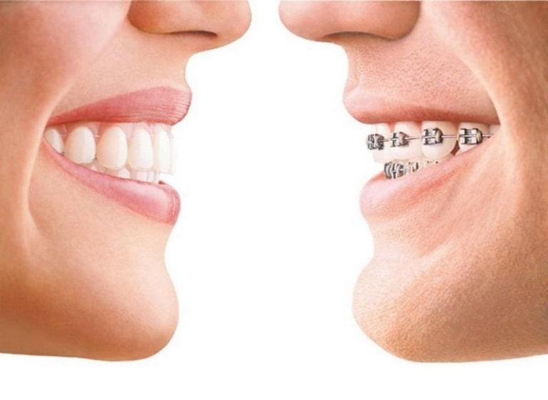 Quy trình niềng răng hô cằm lẹm được thực hiện chuẩn theo Bộ Y tế
