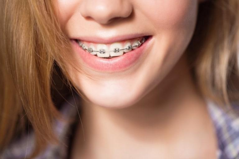 Niềng răng hô cằm lẹm với phương pháp niềng răng mắc cài kim loại được sử dụng phổ biến nhất