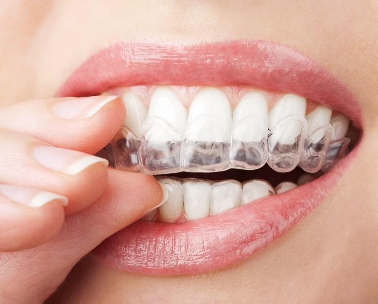 Niềng răng trong suốt có tính thẩm mỹ cao, người niềng có thể tự tin giao tiếp hàng ngày