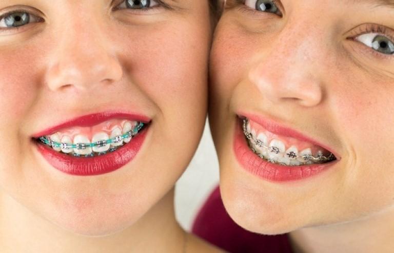 Răng bị hô hàm trên có niềng được không là câu hỏi mà nhiều người thắc mắc