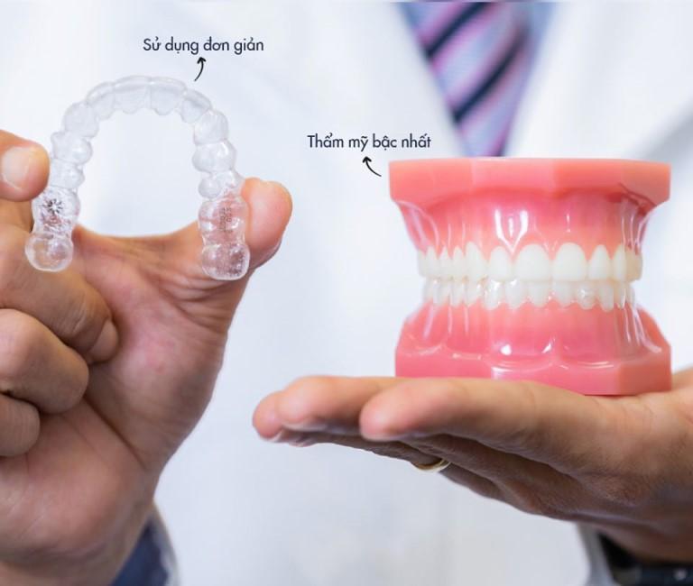 Răng bị hô hàm trên nên lựa chnj phương pháp niềng răng vô hình Invisalign