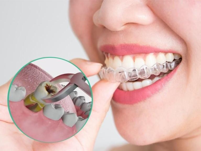 Niềng răng hô hàm trên có cần nhổ răng hay không phụ thuộc vào tình trạng răng miệng của bạn