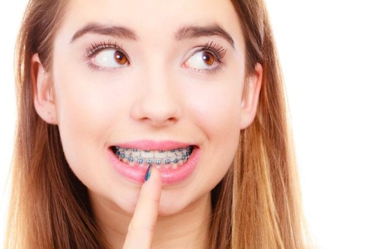 Niềng răng hô không nhổ răng được không
