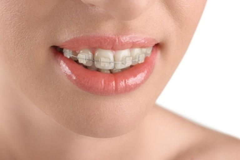 Việc niềng răng hô nướu càng tiến hành sớm càng tốt