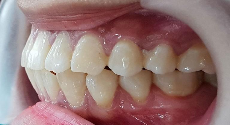 Hô nướu do phần xương hàm dưới nướu nhô ra quá nhiều, làm mất tính thẩm mỹ của răng
