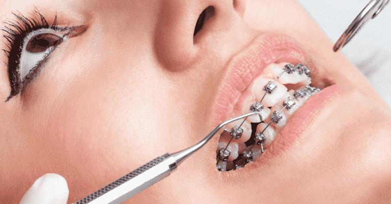 Quá trình phẫu thuật niềng răng phải được thực hiện chuẩn theo Bộ Y tế