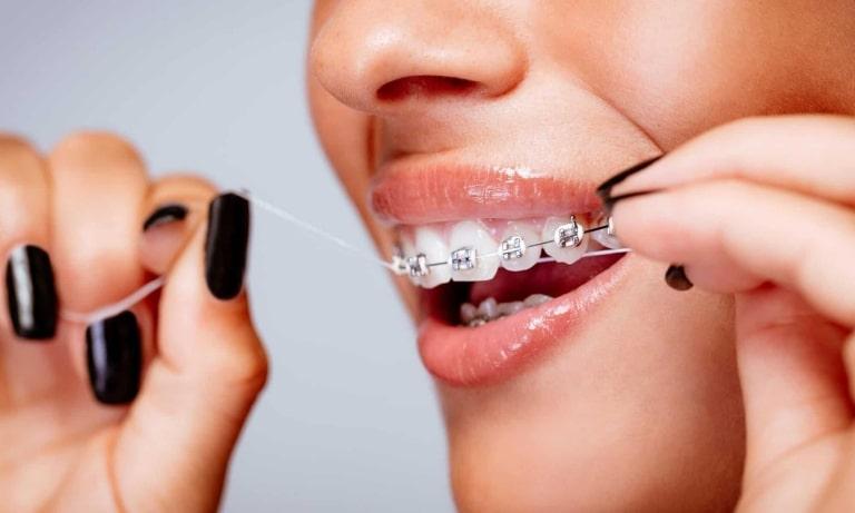 Quá trình niềng răng đòi hỏi người bệnh cần chú ý đến việc chăm sóc răng miệng, ăn uống