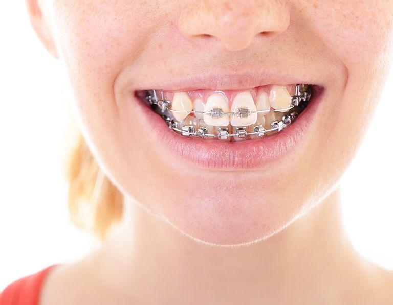 Niềng răng khểnh bao nhiêu tiền là điều mà khách hàng thắc mắc hiện nay