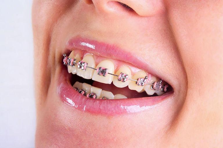Niềng răng mắc cài là phương pháp chỉnh răng khá hiệu quả